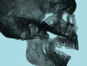 Sujet-Ausschnitt. © Ludwig Boltzmann Institut für Klinisch-Forensische Bildgebung